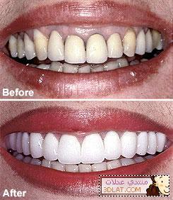 تاج ضع علامة أسفل يقلى العدسات اللاصقة للأسنان Comertinsaat Com