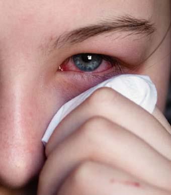 إلتهاب ملتحمة العين اعراضه علاجه والوقاية 12944744281.jpg