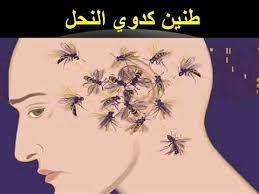 الطنين الرأس وأسبابه 3dlat.com_05_18_2372