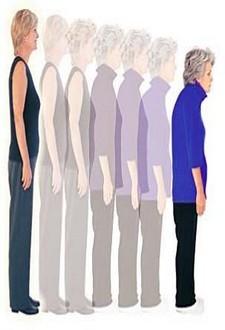 هشاشة العظام عند المرأة(خاصة) الأسباب و الوقاية و العلاج 3dlat.com_1401832504