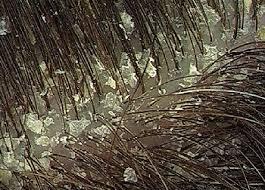 علاج قشرة الشعر وأسباب الإصابة 3dlat.com_14_18_fa49