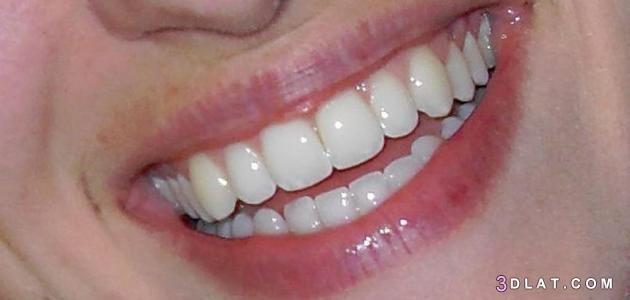 أسنان, الاس, الاسنان, الحصول, بيضاء2019, تبييض, طبيعية, طرق, كيفية, لتبييض, وصفات