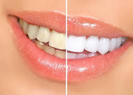 تبييض الاسنان احصلي على ابتسامة ناصعة البياض خلال دقيقة واحدة بهذه الوصفات 3dlat.net_07_15_de96