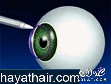 تصحيح النظر في تركيا وعمليات الليزك للتخلص من النظارة