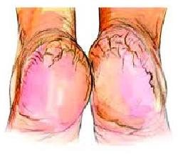 علاج تشقق القدمين افضل 5 حلول تخلص من تشقق اقدام 3dlat.net_18_17_ce32