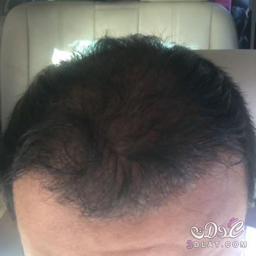 تجربتي في مركز اثيكانا كلينك لعملية زراعة الشعر في تركيا