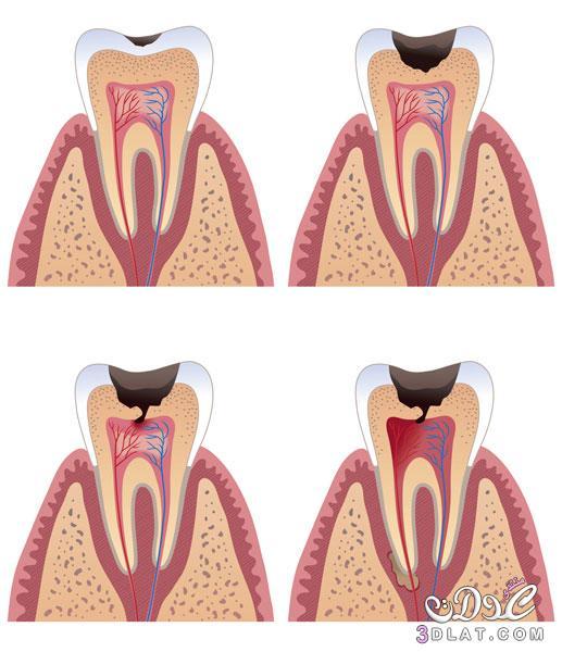 تسوس الاسنان, ملف كامل عن تسوس الاسنان[أسباب، عوامل،التشخيص،علاج، الوقاية من التسوس] 3dlat.net_23_15_4ba1